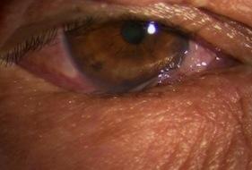眼瞼内反-術前