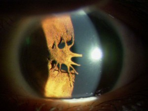 瞳孔膜遺残1