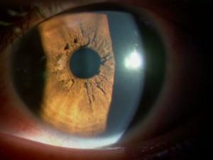 瞳孔膜遺残2